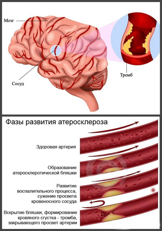 тромб, атеросклероз