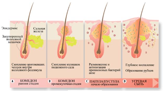 процесс воспаления волос
