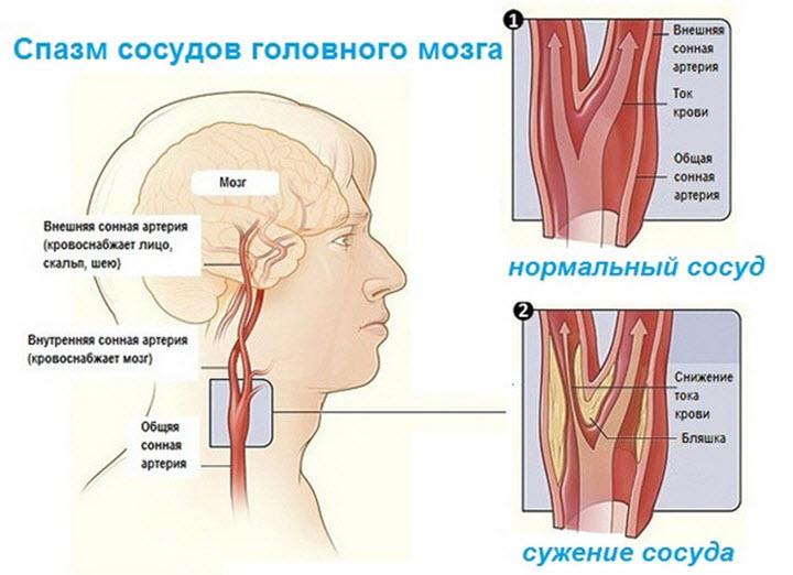 схема: сужены сосуды головного мозга