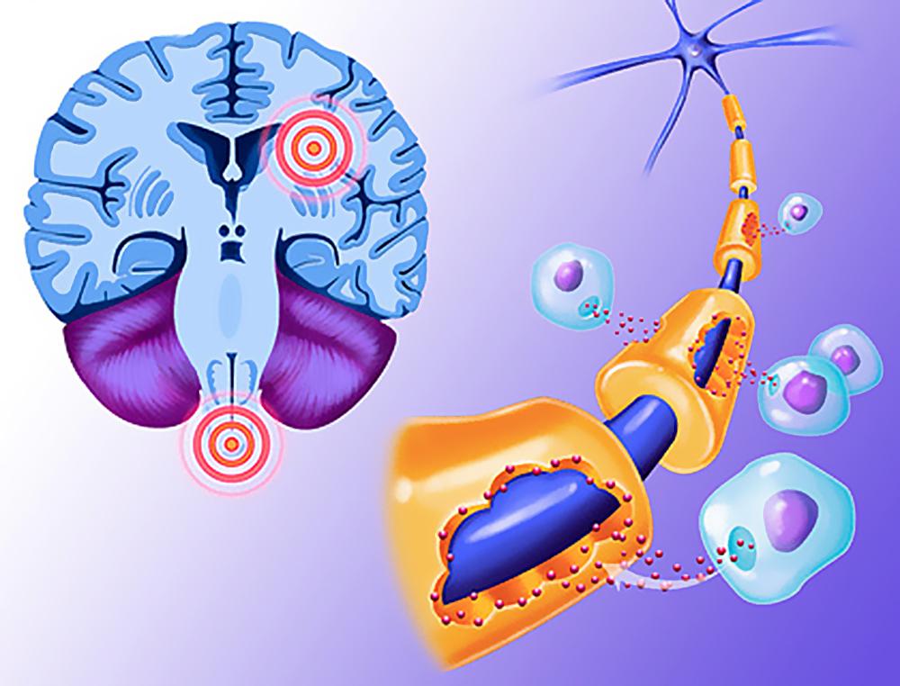 пораженный нейрон