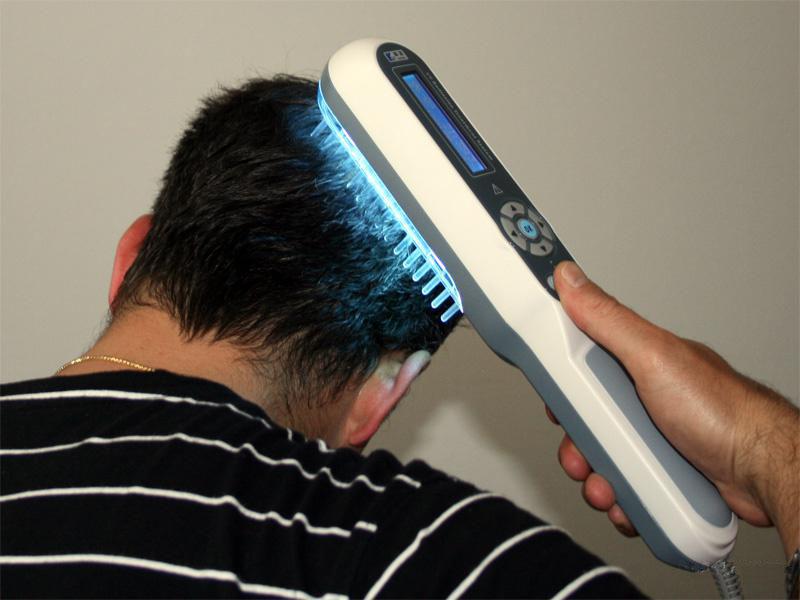 обработка головы ультрофиолетом