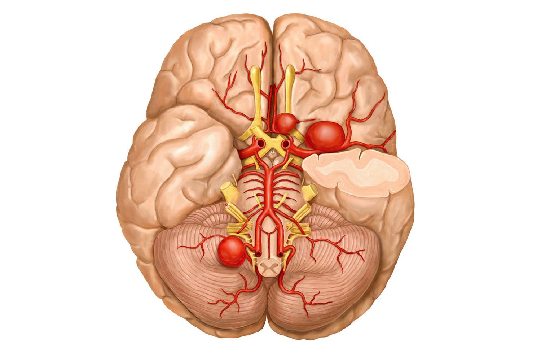 Аневризма головного мозга: методики диагностики и лечения