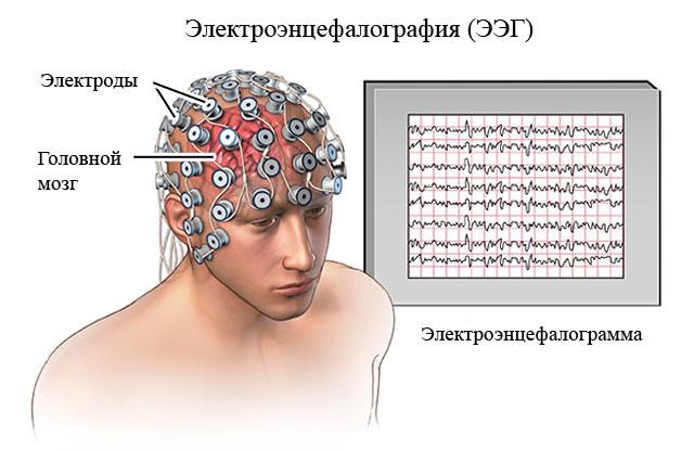 энцефалография