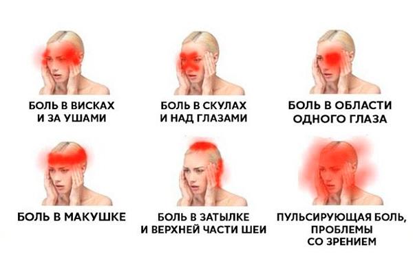 Мигрени и их различные варианты