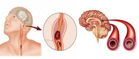 мозг,артерия