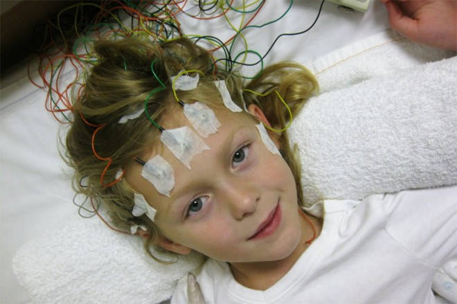 Как лечить эпилепсию у детей