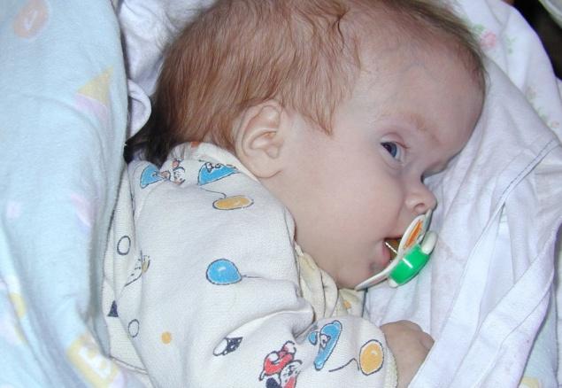 У новорожденного водянка головного мозга