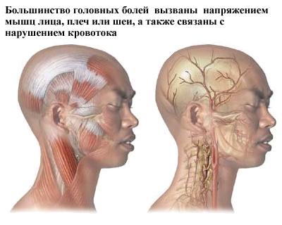 Причины возникновения головной боли напряжения