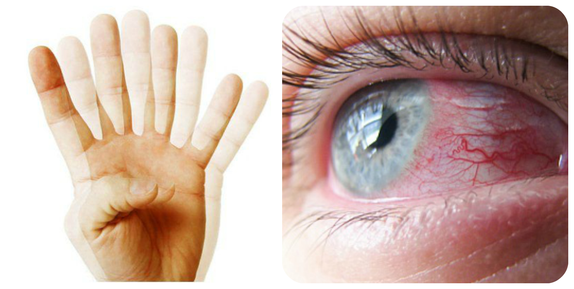 двоение в глазах, конъюнктивит