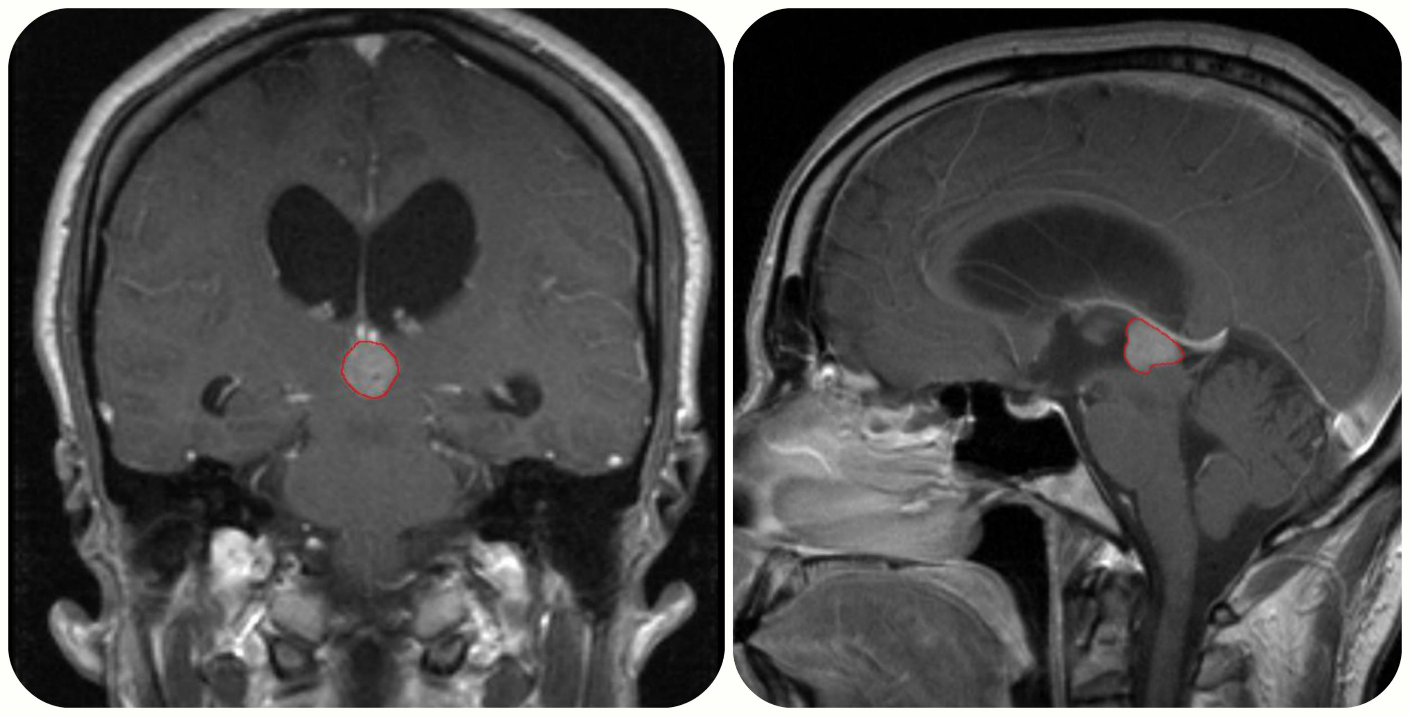 МРТ-исследовани шишковидной железы