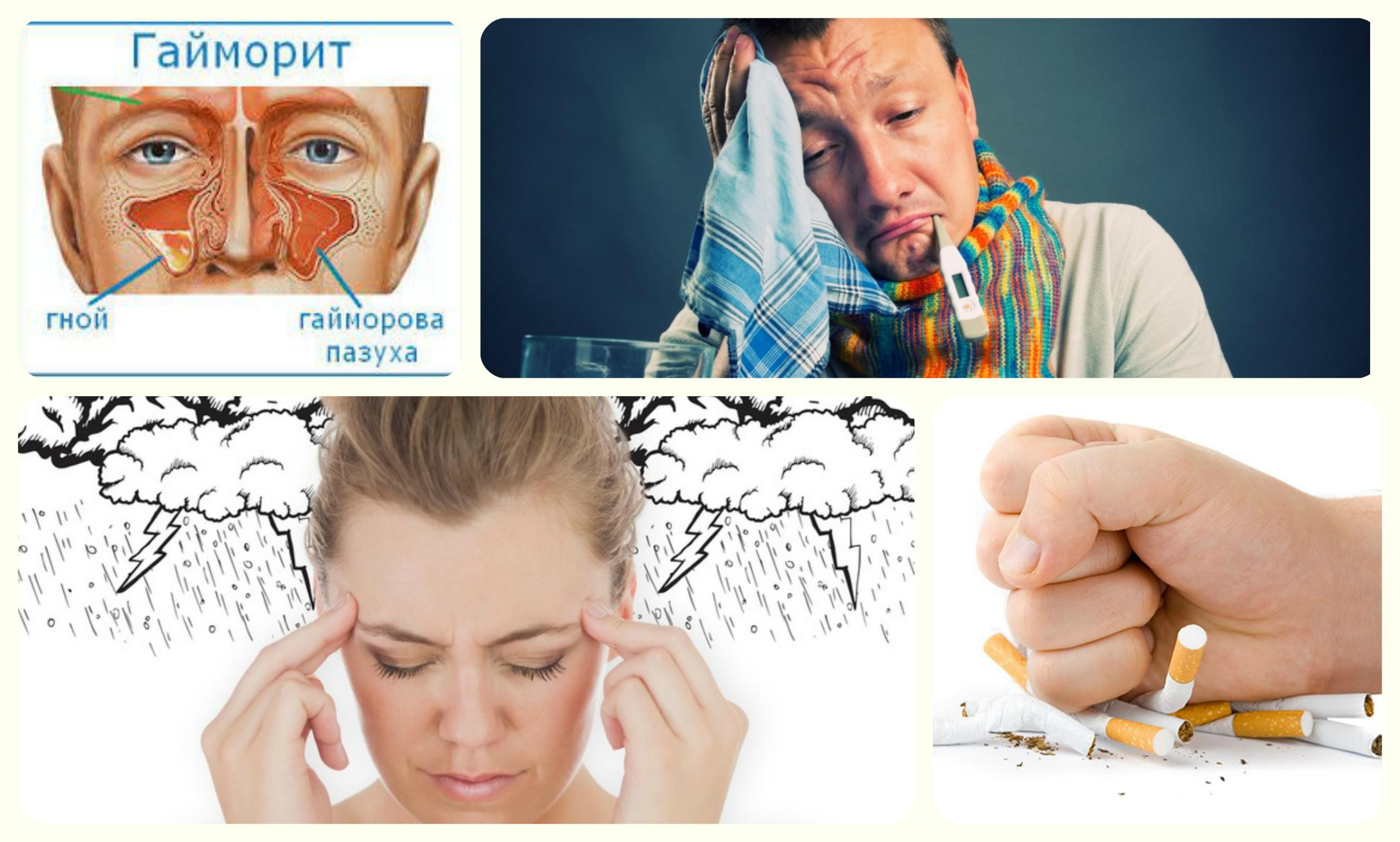 гайморит, простуда, метиочуствительность, курение