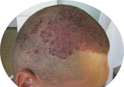 почему болят корни волос на голове - дерматит