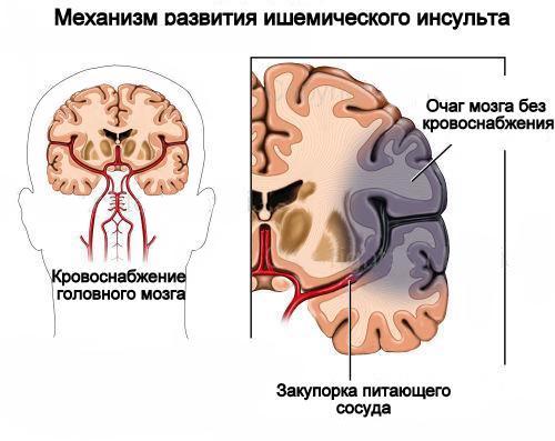 механизразвития ишемического инсульта