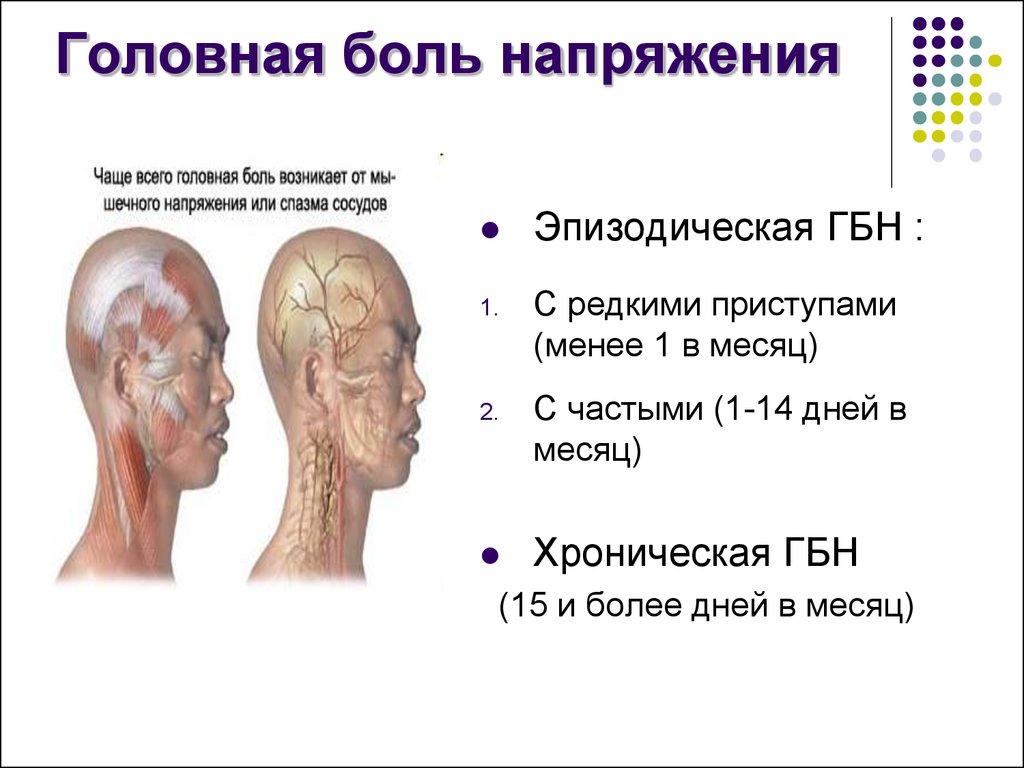боль головная напряжения