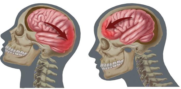 сотрясения головного мозга последствия