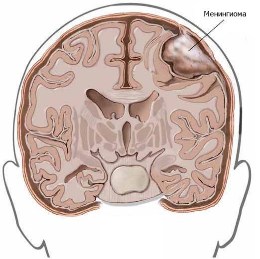 Менингиома головного мозга