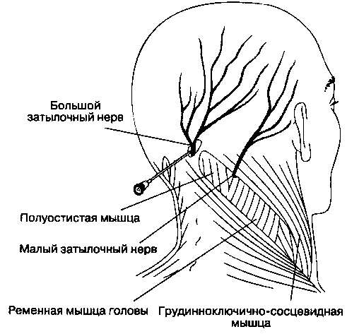 затылочный нерв