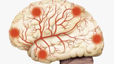 Как проверить сосуды головного мозга