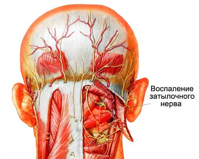 Лекарство при невралгии затылочного нерва