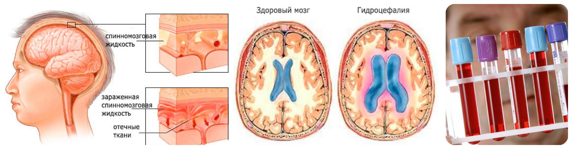 гидроэцофалия, воспаление оболочки мозга, биохимеческий дисбаланс