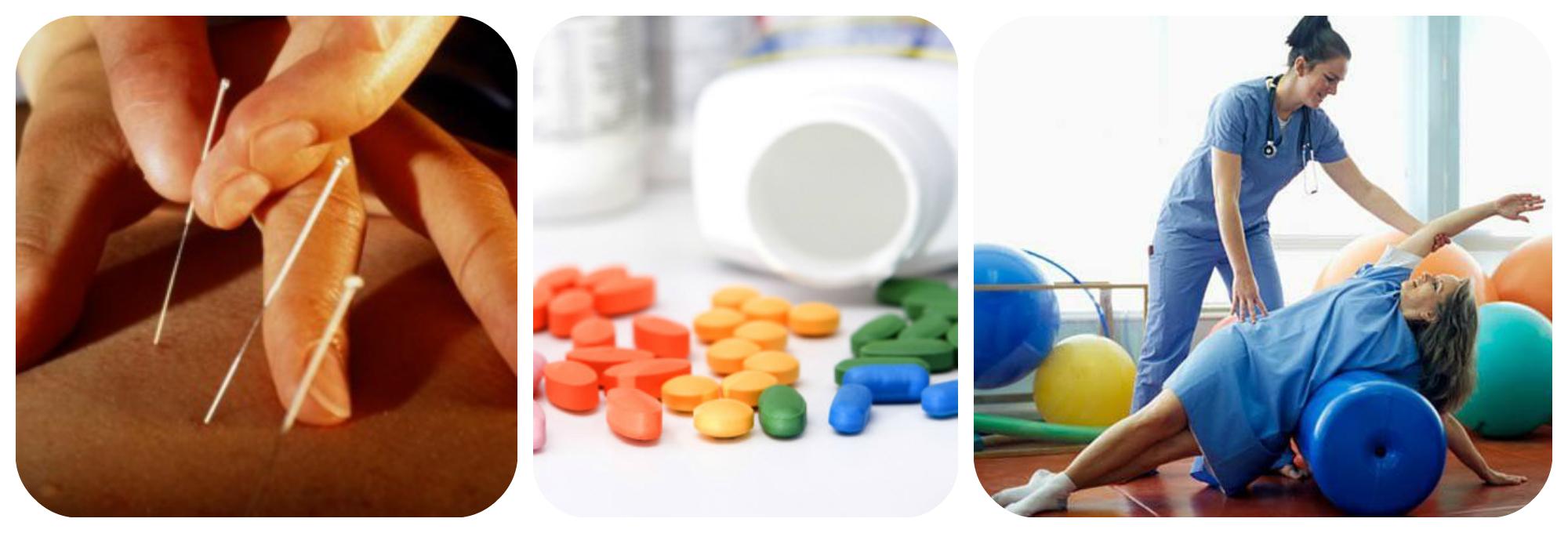 лфк, иглоукалывание, медикаменты