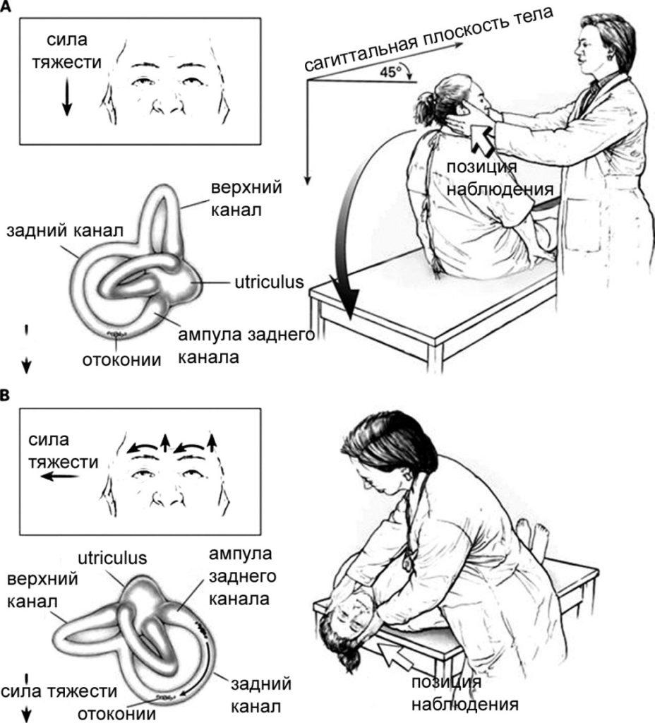 диагностика дппг