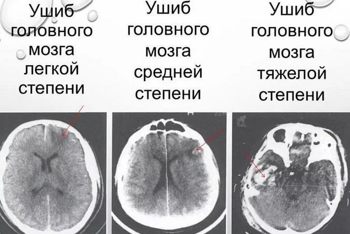Степени сотрясений головного мозга