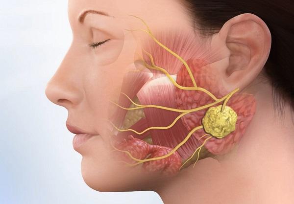 абсцессы в лимфатических узлах