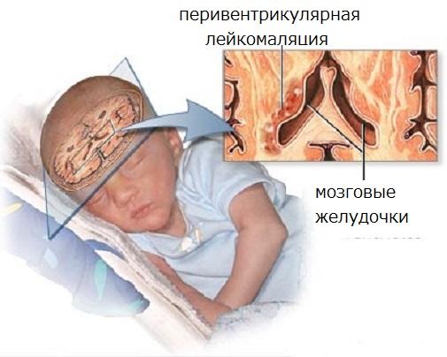 лейкоэнцефалопатия головного мозга что это такое