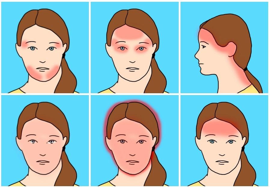 виды головной боли в картинках