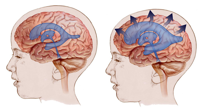 гидроцефалия