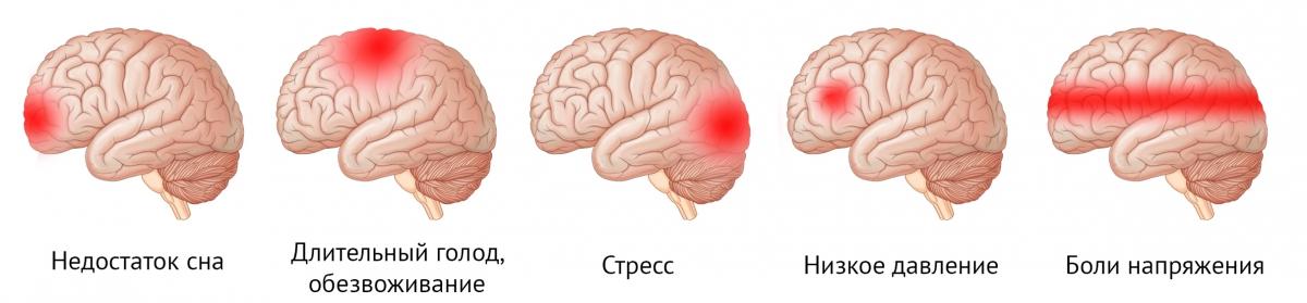 виды головной боли и ее причины
