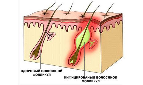 воспаления волосяного фолликула