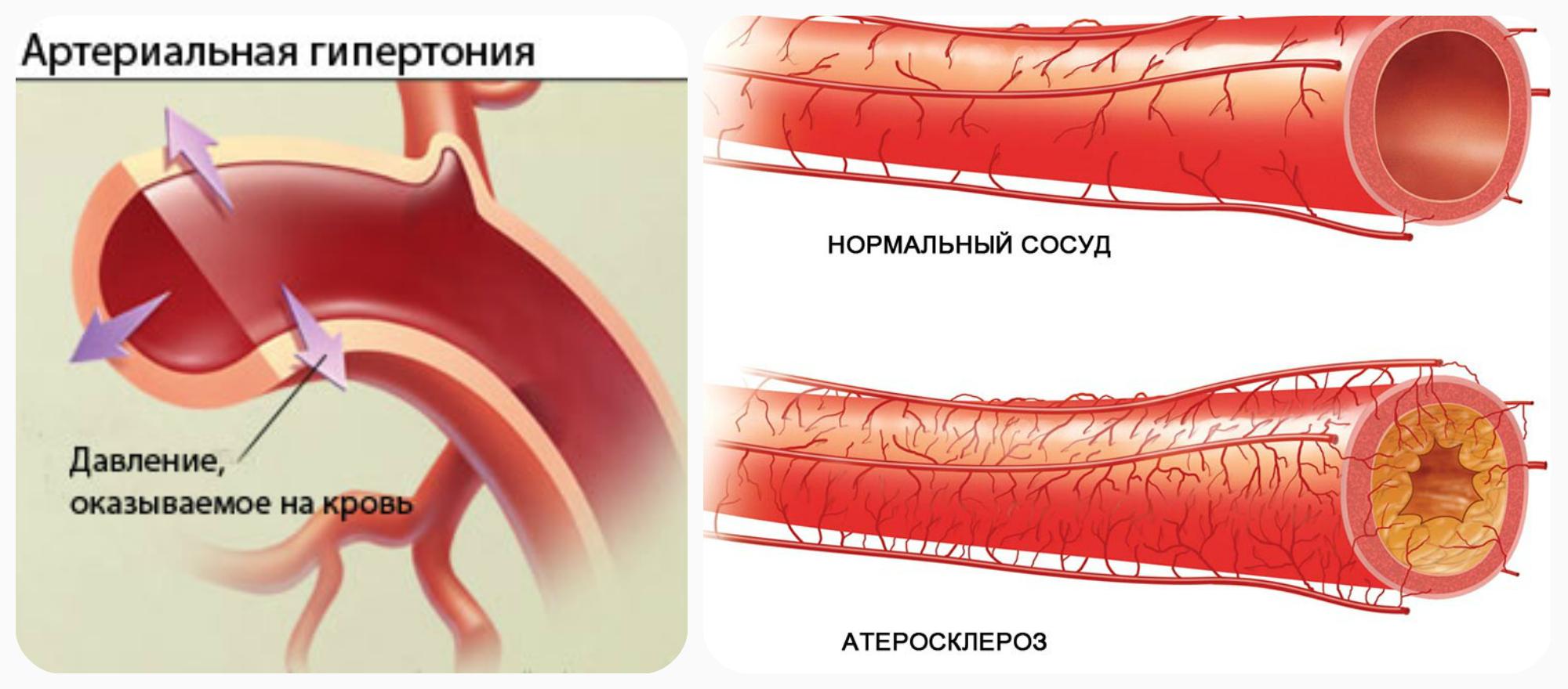 гипертония и атеросклероз