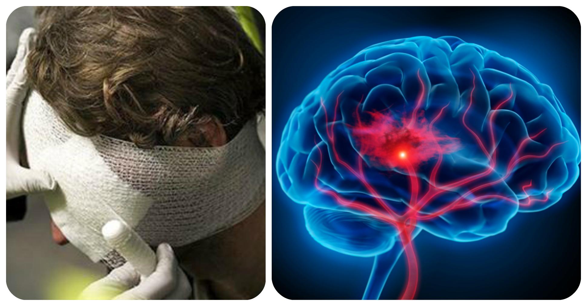 черепно-мозговая травма инсульт