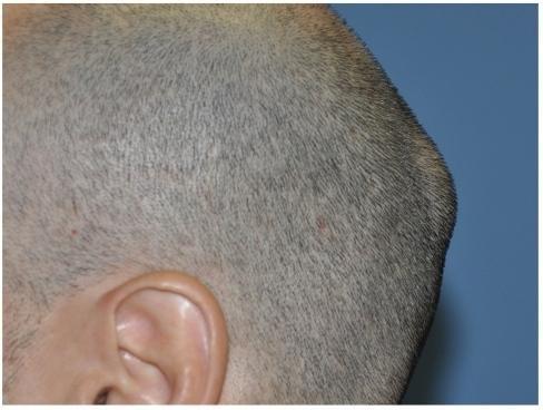 остеома затылочной части головы