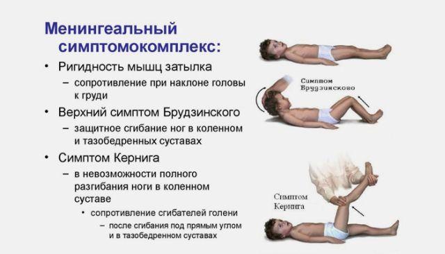 менингеальный синдромом