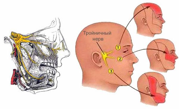 Невралгическая цефалгия