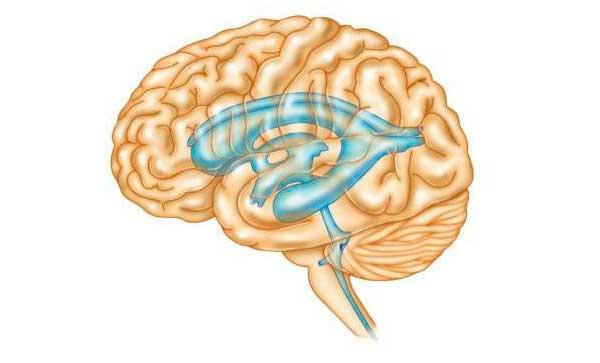 Гидроцефалия головного мозга