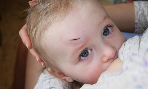 Шишка у ребенка на голове