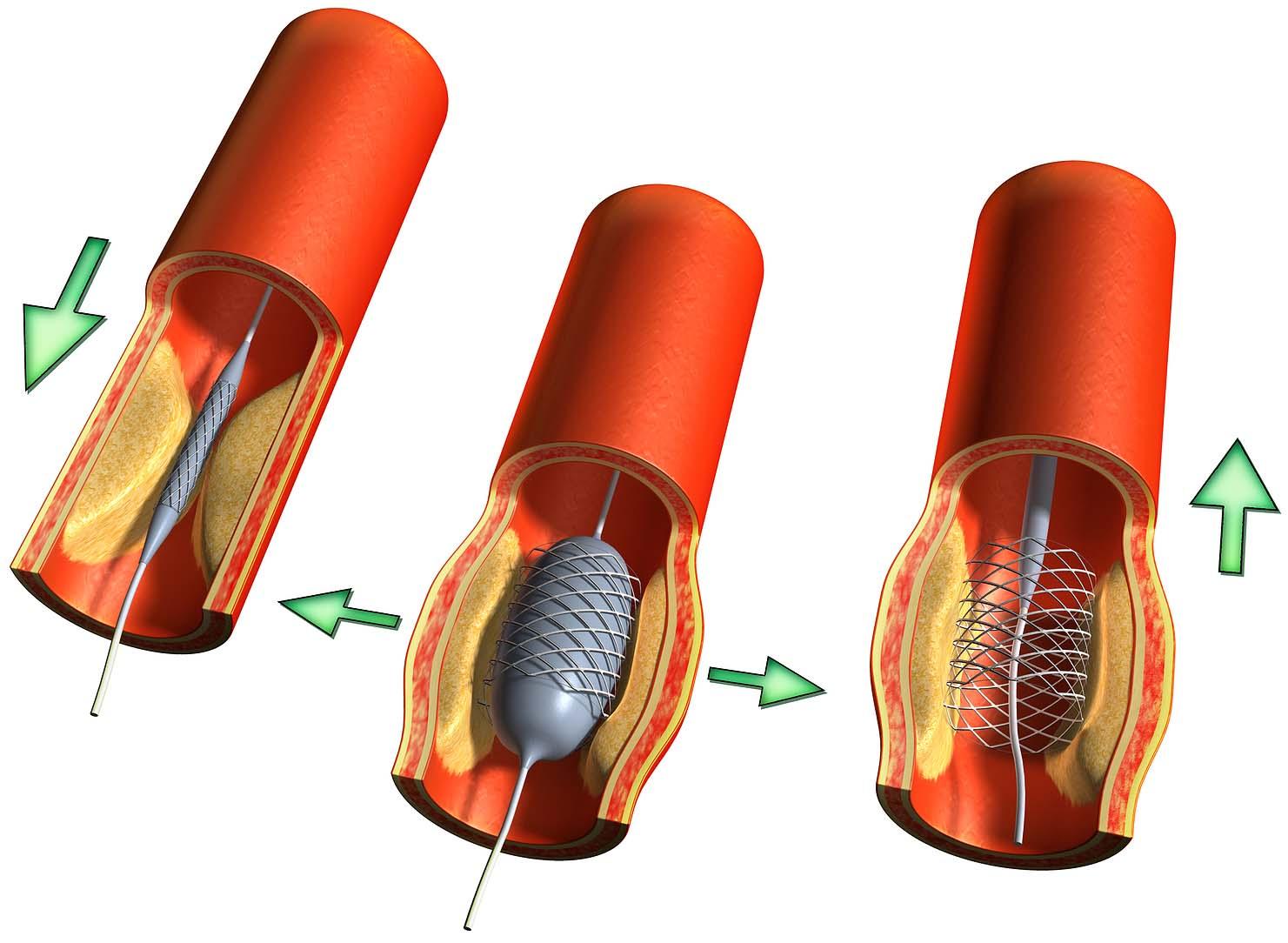 эндоваскулярного стентирования