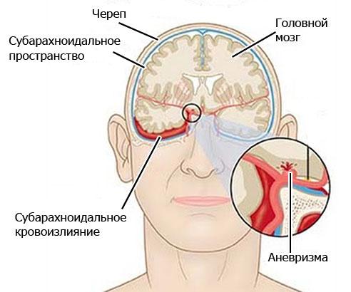 Кровоизлияние в субарахноидальную полость