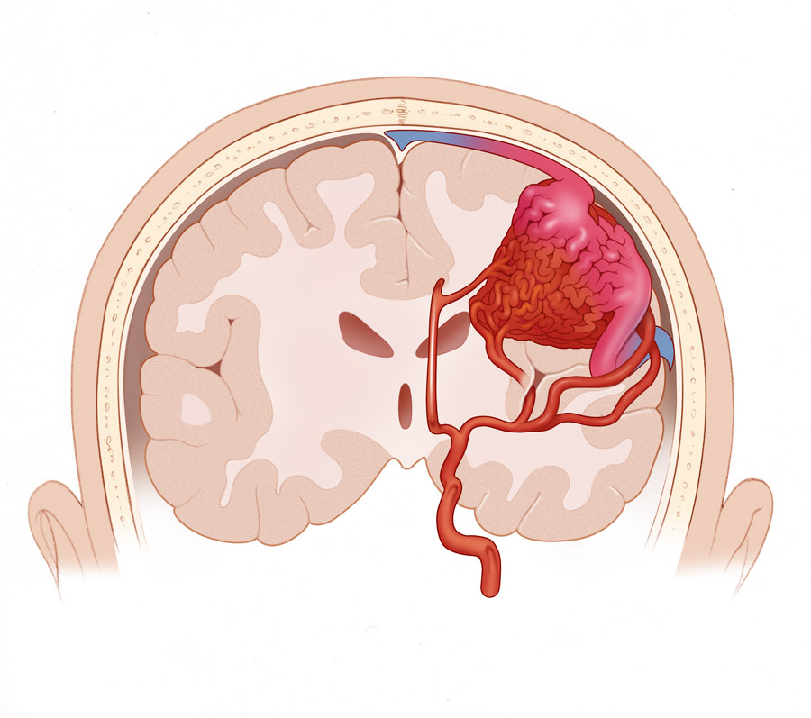 Кавернозная ангиома головного мозга лечение