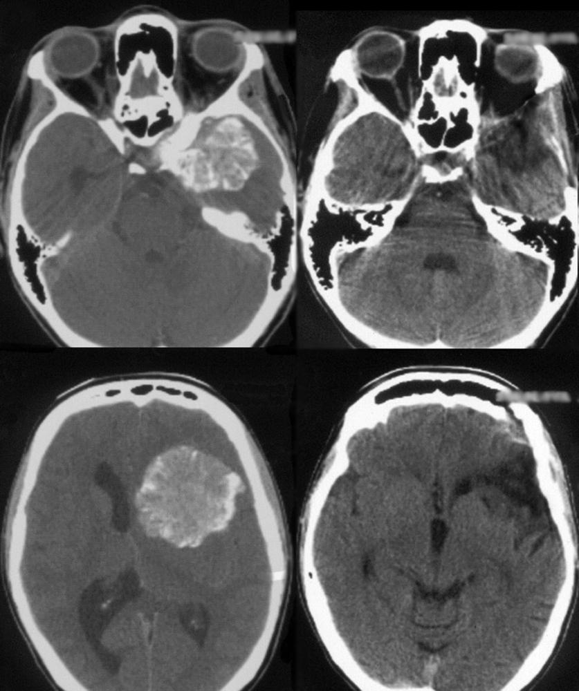 Резкая боль в голове (стреляющая): слева, справа