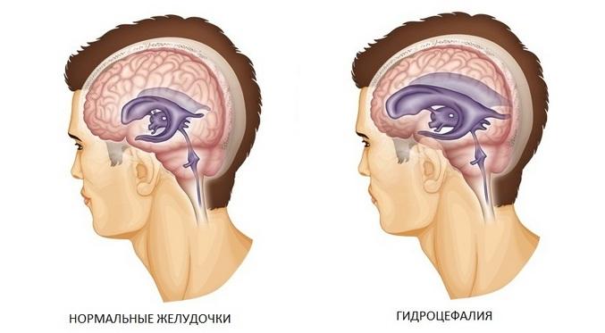заболевания головного мозга: гидроцефалия и норма
