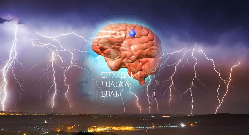 опухоль причина головной боли