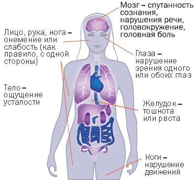 симптомы нарушений мозгового кровообращения