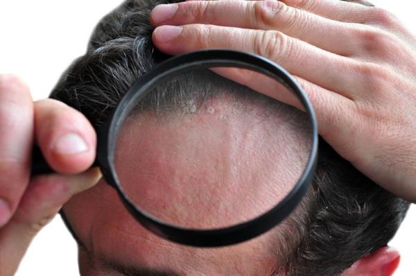 что делать если шелушится кожа головы
