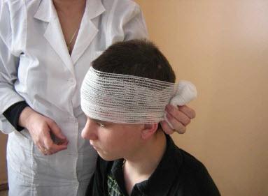Лечение черепно-мозговой травмы признаки и классификация