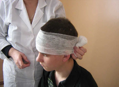 TSirkulyarnyj zakreplyayushhij tur vokrug golovy 1 - Traumatismo craneoencefálico Traumatismo craneoencefálico Tipos de cabeza causas signos ayuda tratamiento